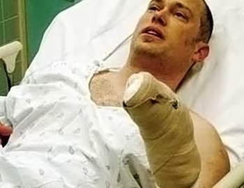 Фото. Парень с пораненной рукой на койке