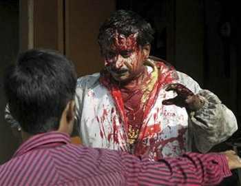 Фото. Раненый мужчина из-за нападения большой кошки