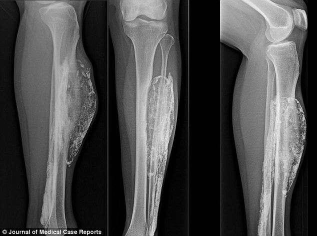 Рентгеновский снимок при компартмент синдром