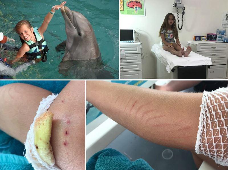 дельфины покусали девочку