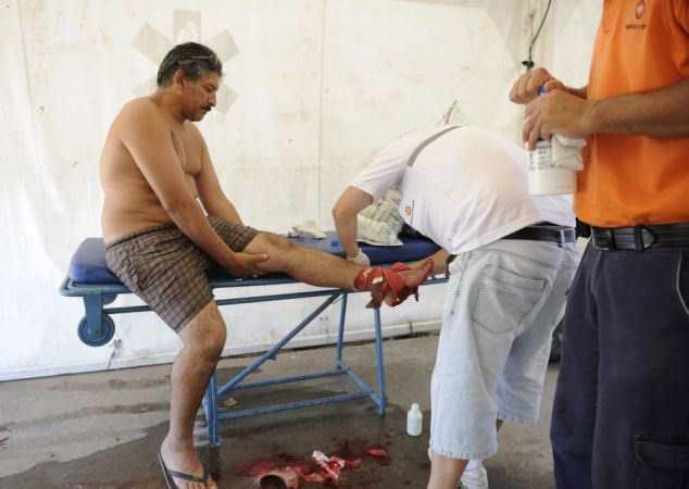рваные раны на ноге у мужчины