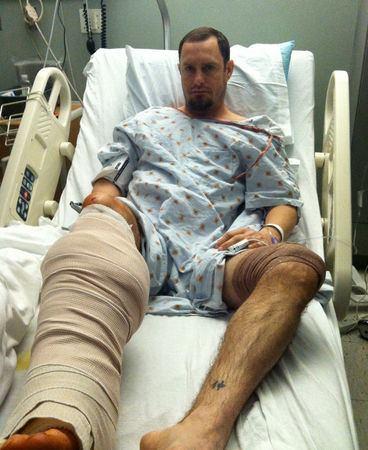 парень с рваными ранами на ноге
