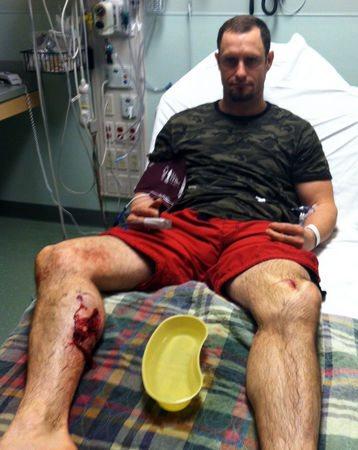 раны на ноге после нападения кабана