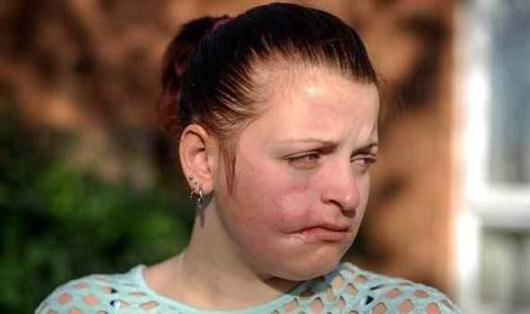 девушка плачет из-за ран на ее лице