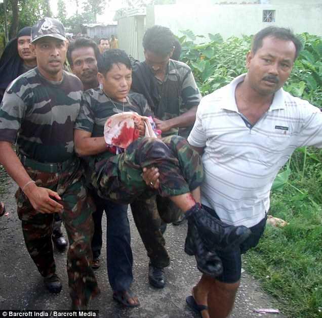 несут оковавленного человека из-за нападения леопарда