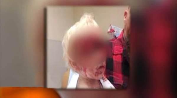 лицо мальчика после нападения лабрадора