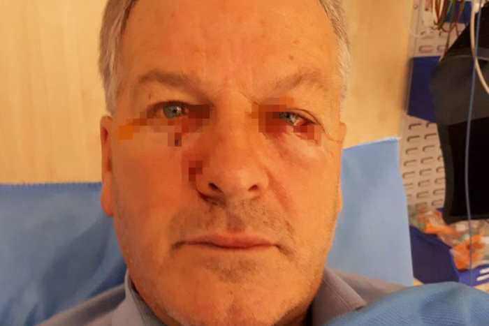глаза мужина после нападения кенгуру