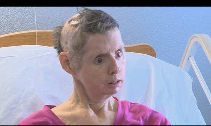 женщина пострадавшая от шимпанзе