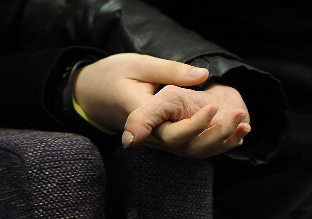 рука без пальцев