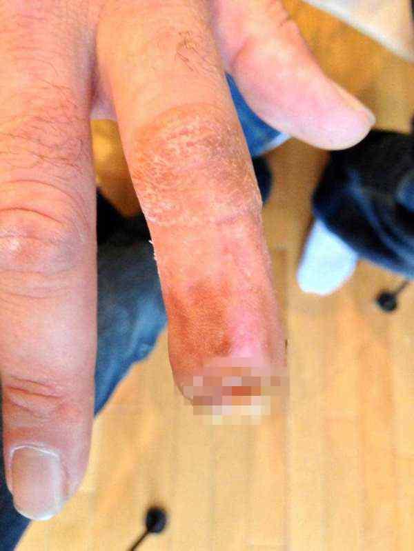 палец откушенный лошадью