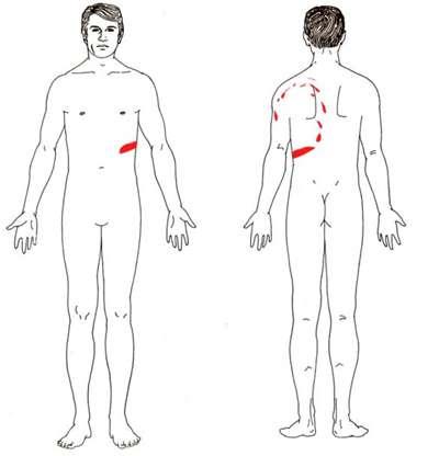 укусы на теле мужчины