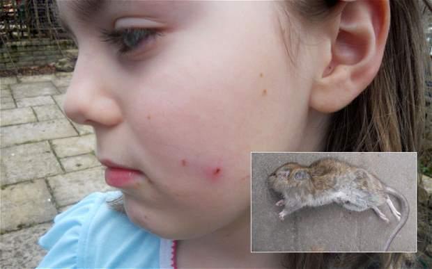 девочку укусила крыса