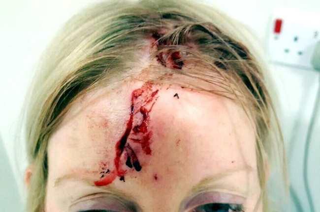 женщина и ее раны головы