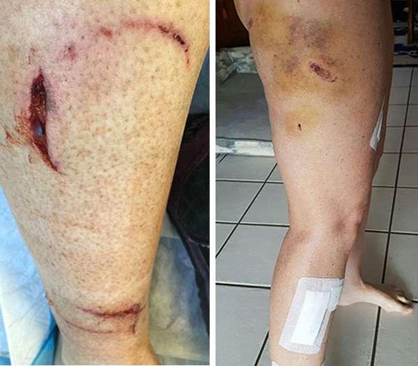 раны полученные после нападения вомбата