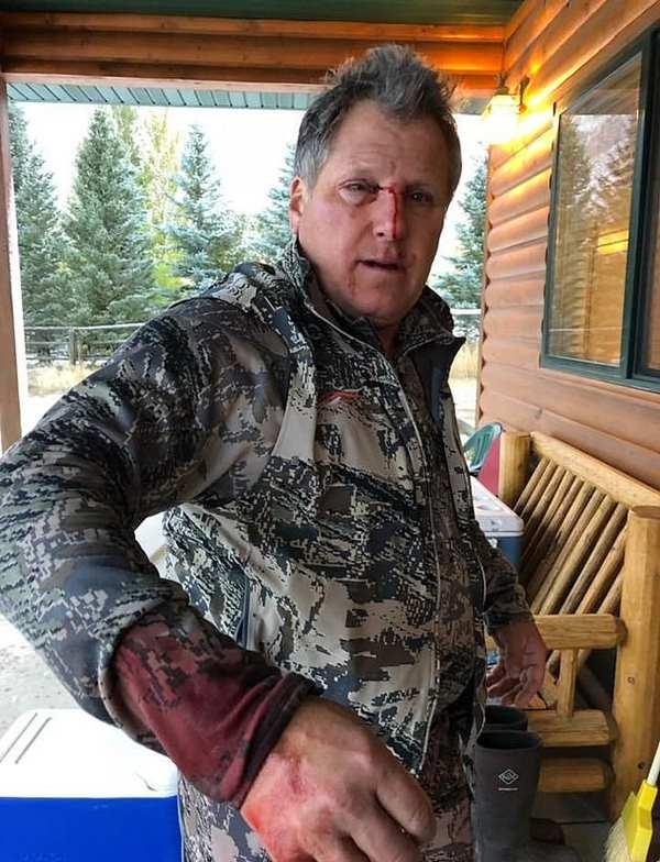 мужчина ранен медведем гризли