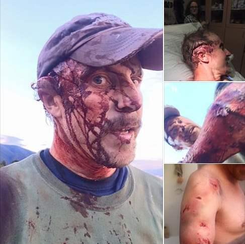 мужчина после атаки гризли