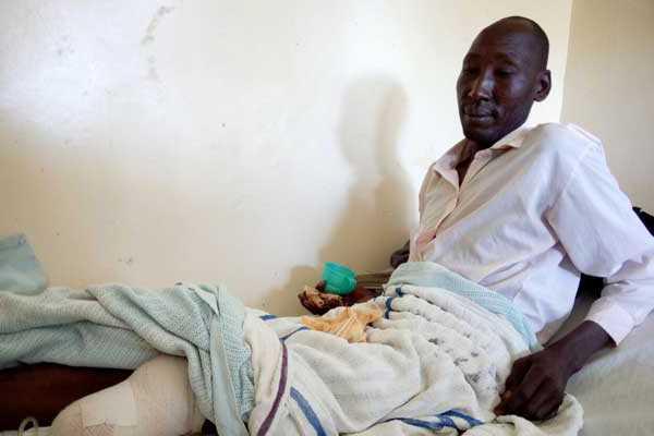 мужику отрезали ногу по колено