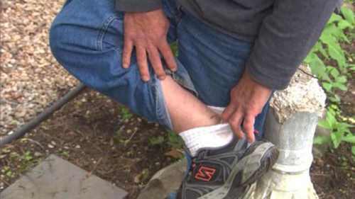 мужчину укусила лиса за ногу