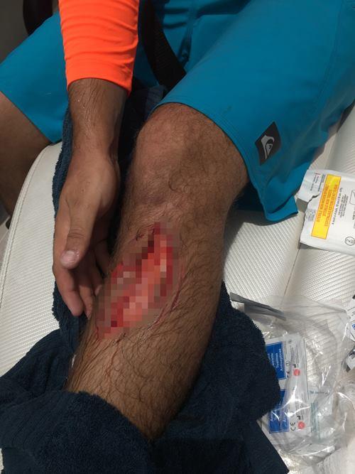 акула укусила за ногу