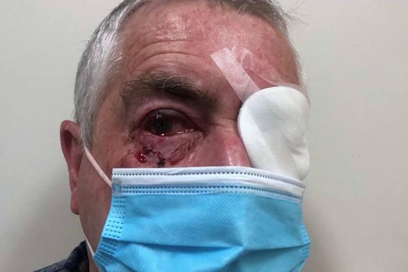 мужчине в глаз попала сорока