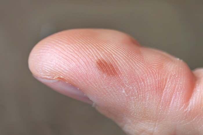 химический ожог на пальце