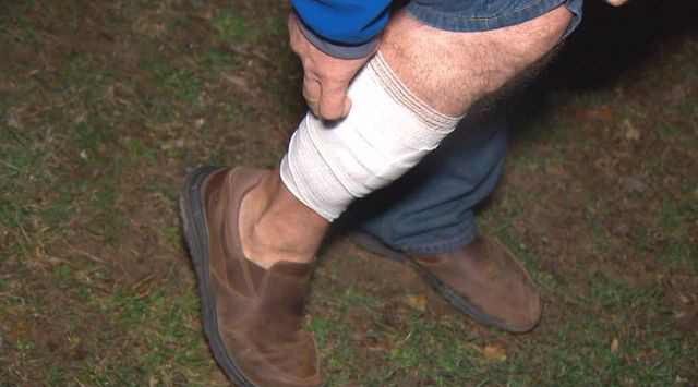 лиса укусила мужчину за ногу