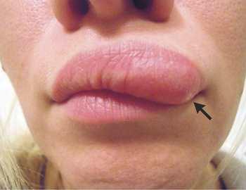 червь в губе женщины