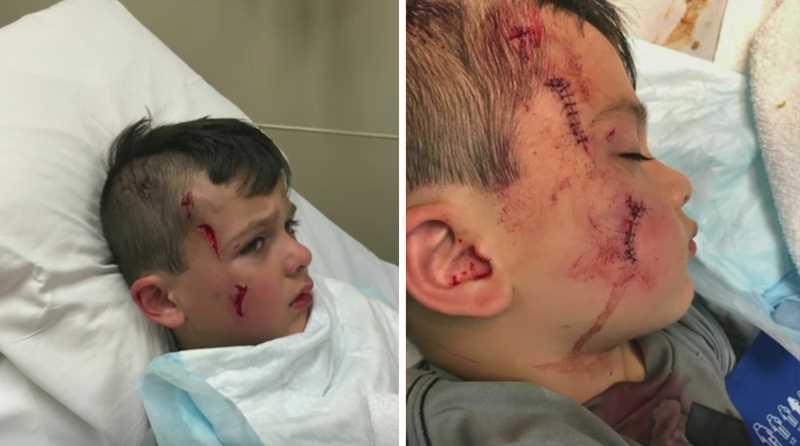 мальчик пострадал от нападения ильки