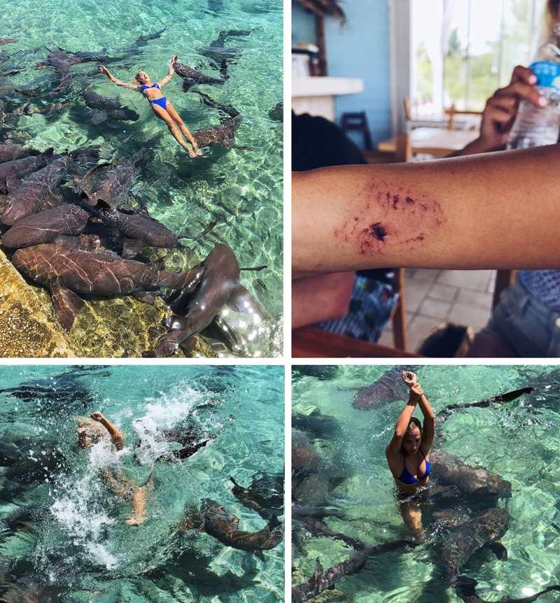 акулы-няньки укусили модель за руку