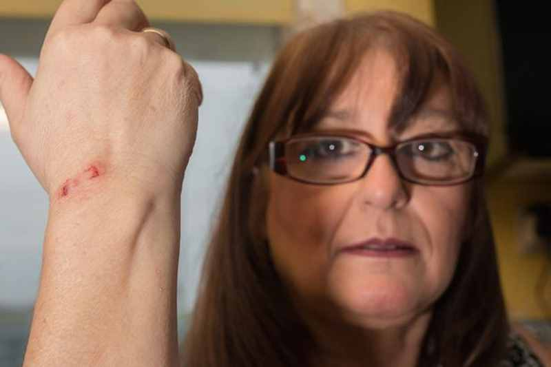 женщину укусил кролик