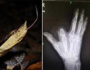 китаец отрезал палец