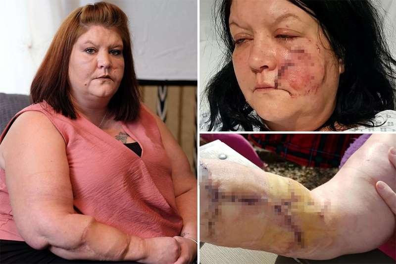 нападение хаски на женщину