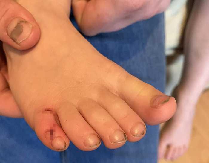 рана на ноге девочки от укуса ежика