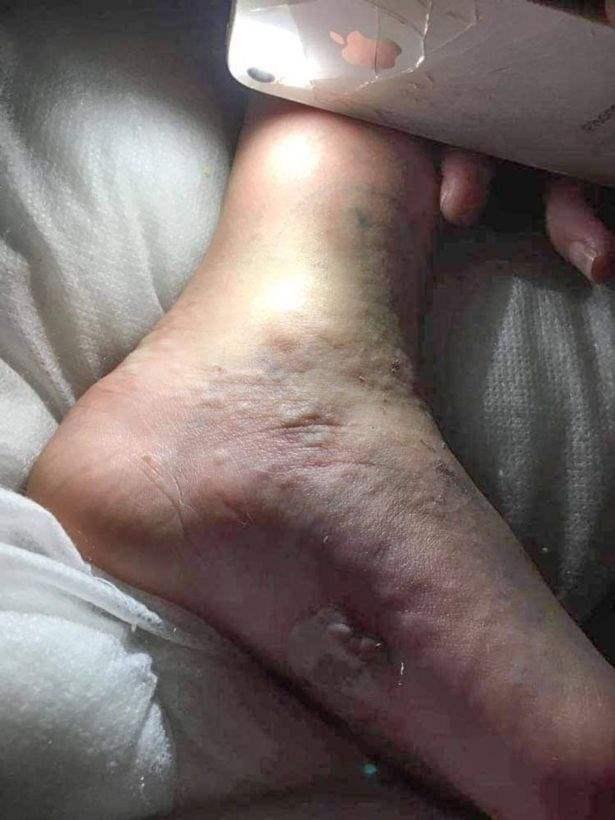 мама проверяет ногу дочери